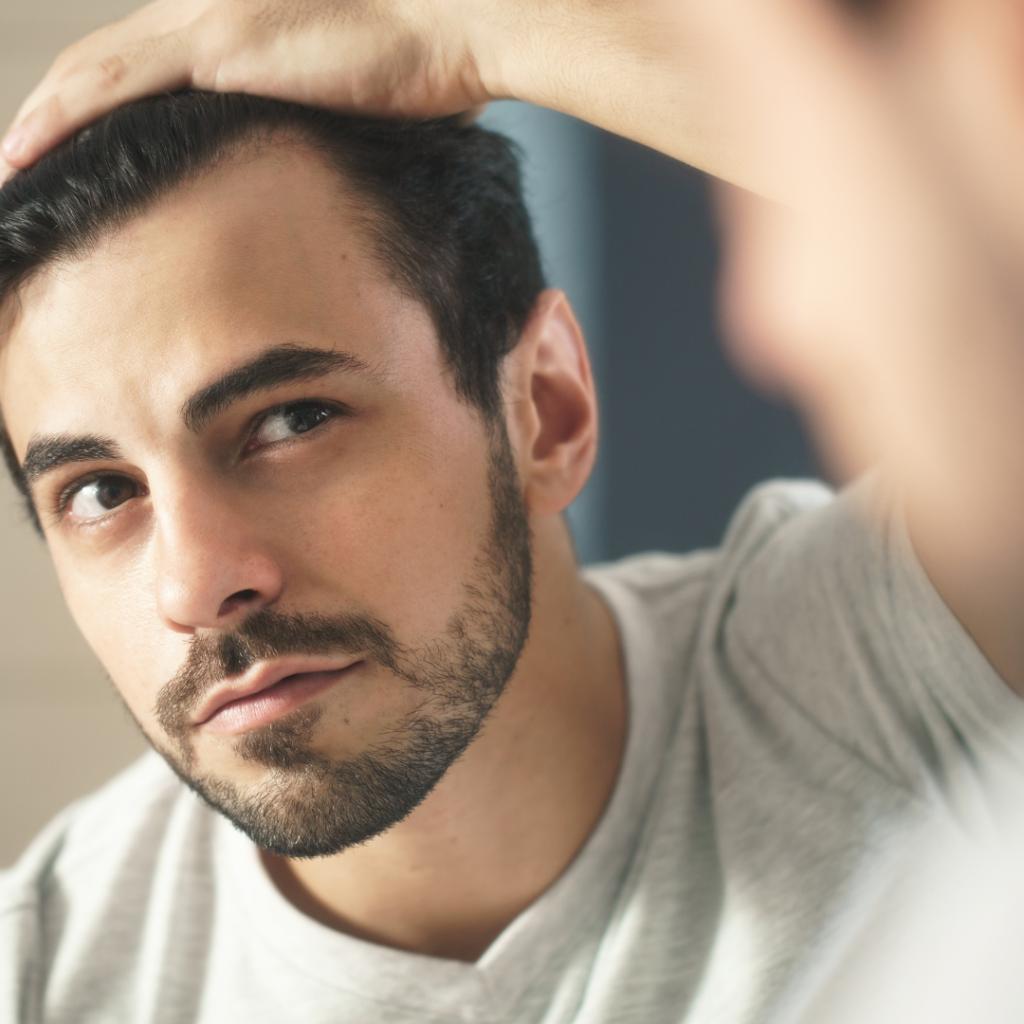 Alopecia man